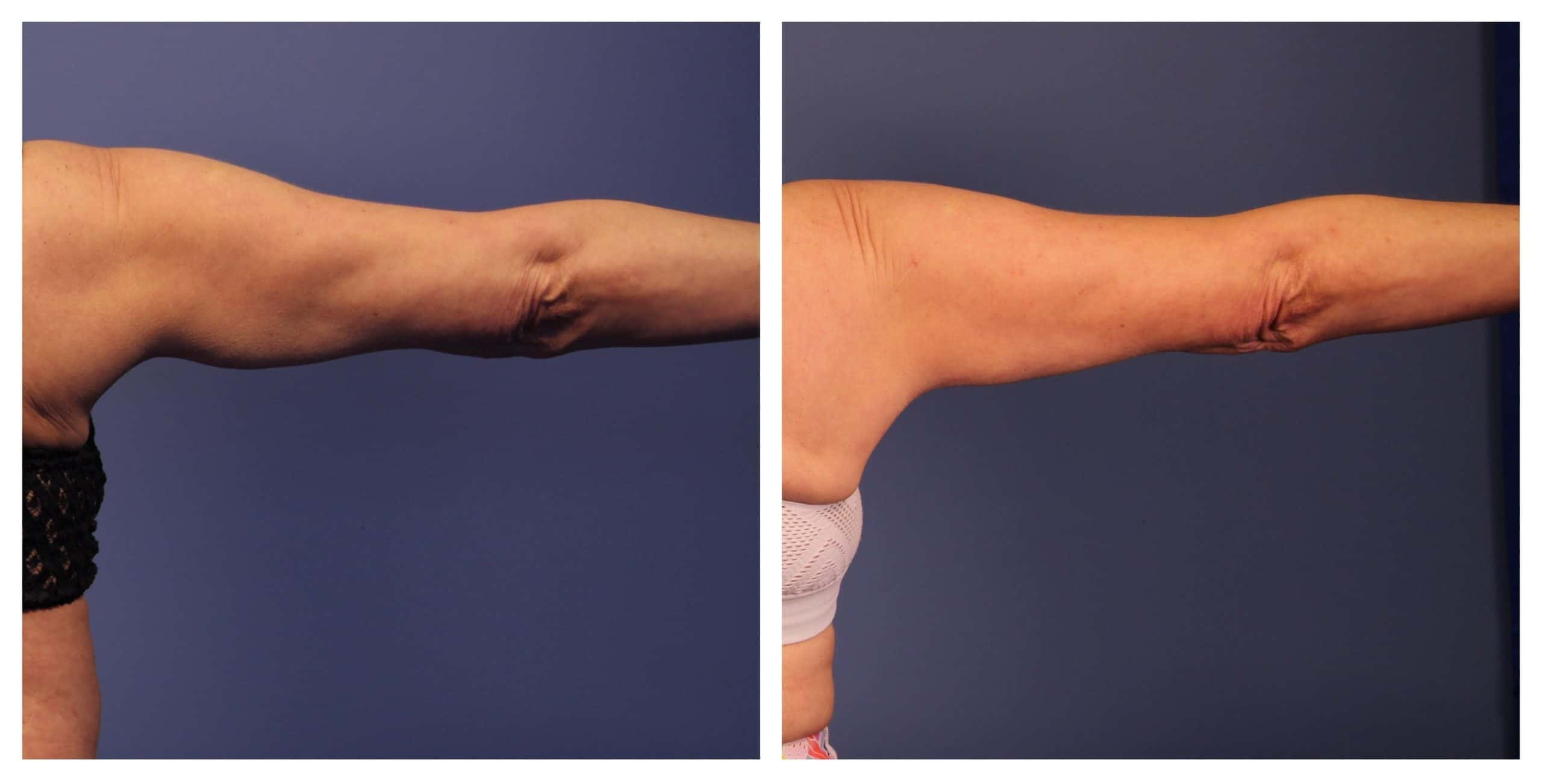 CoolSculpting arm before and after