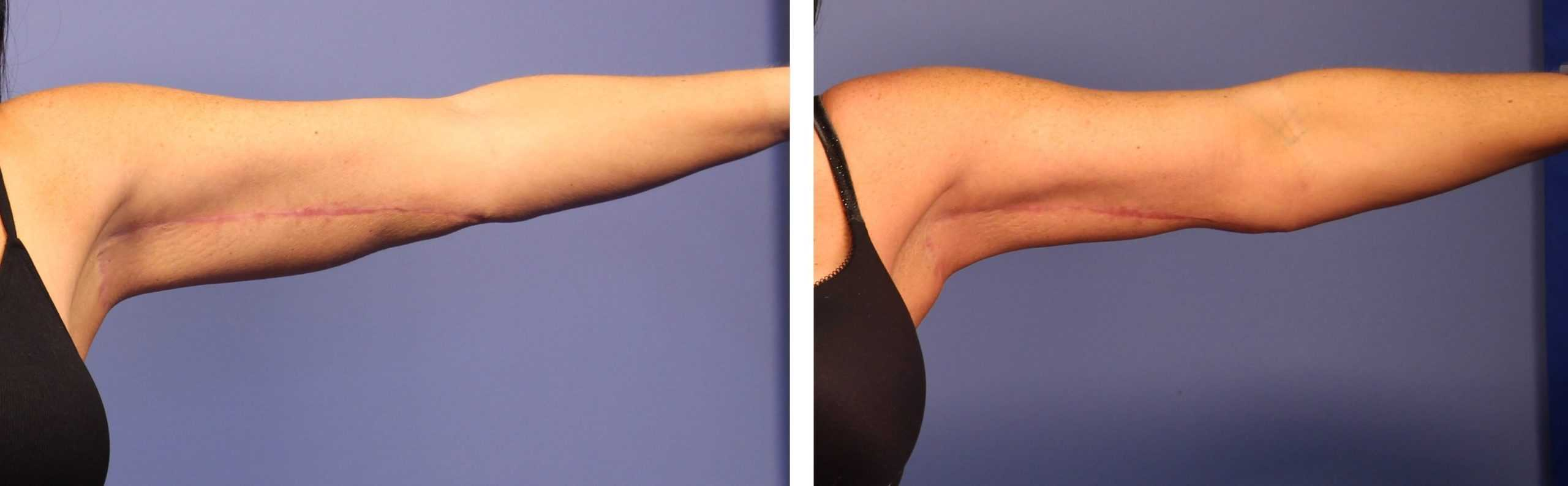 CoolSculpting for Arms Guide   Find Out If CoolSculpting Upper ...