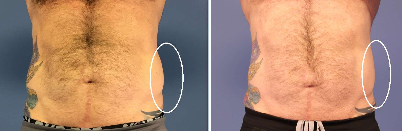 CoolSculpting for men love handles before and after
