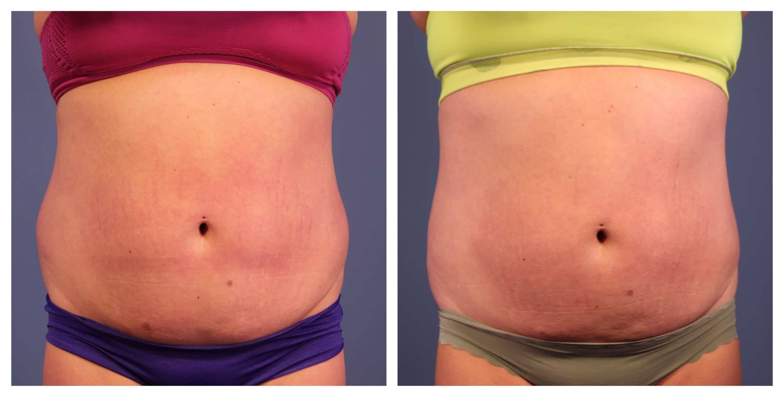 Coolsculpting results abdomen and love handles before and after